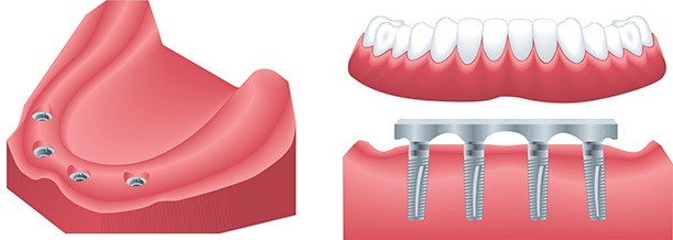 West Los Angeles cosmetic dentist | dental implants, denture implant| Le Chic Dentist